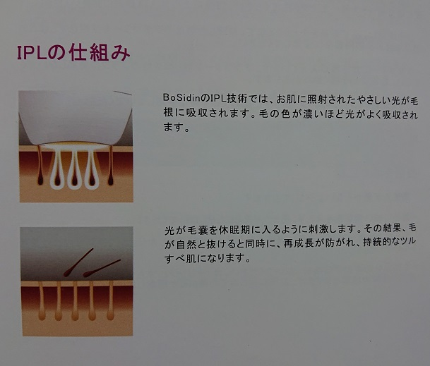 BOSIDINレーザー脱毛器の取扱説明書