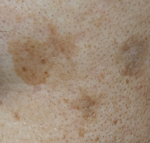 薬用美白美容液使用1ヶ月後