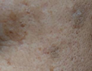 薬用美白美容液使用3ヶ月後