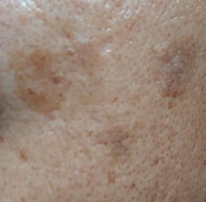 薬用美白美容液使用4ヶ月後