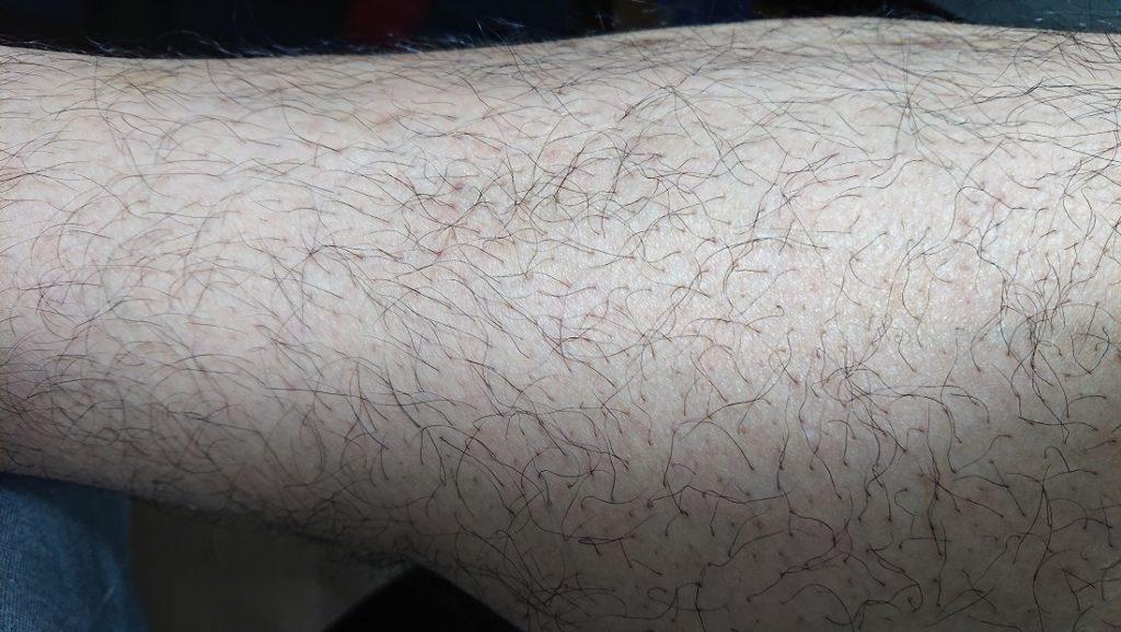 レーザー脱毛 4ヶ月後