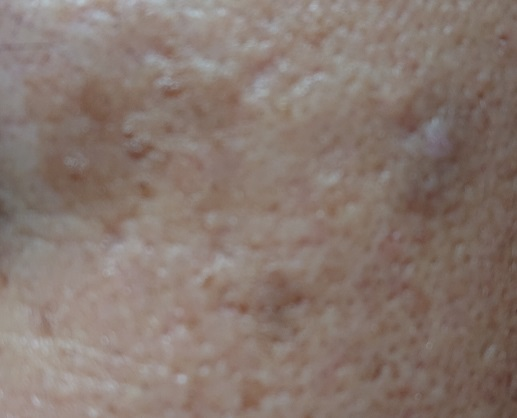 薬用美白美容液使用6ヶ月後