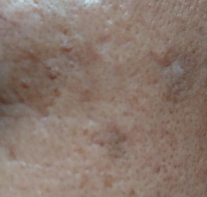 男の顔のシミ取り実験7ヶ月後
