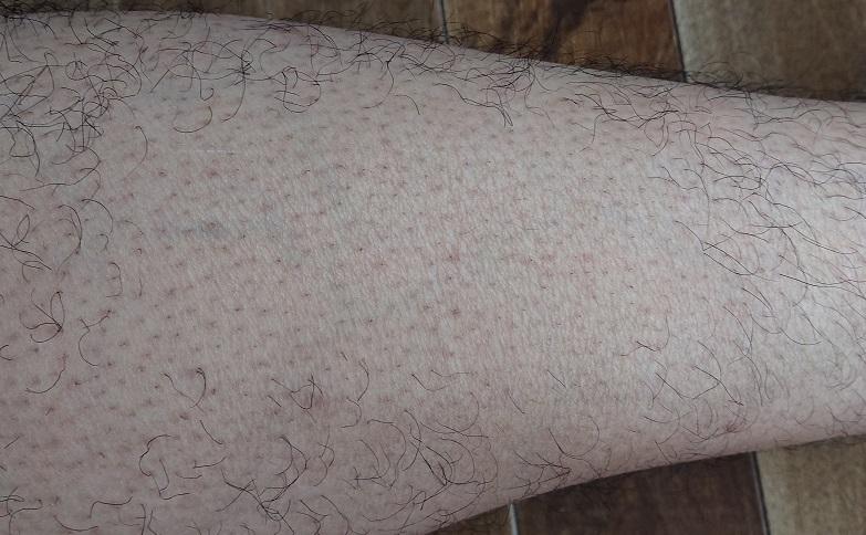 トリアレーザー脱毛 4ヶ月後の足
