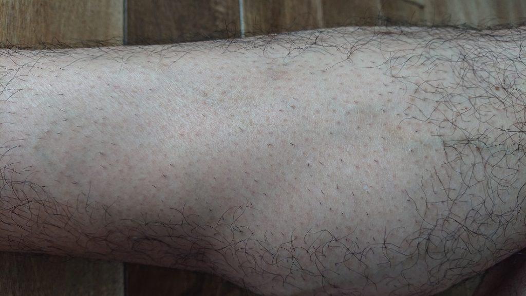 家庭用レーザー脱毛器使用の2週間後の足
