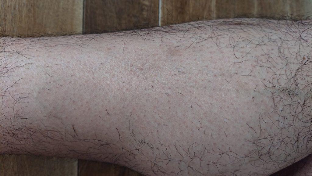 家庭用レーザー脱毛器使用の4週間後の足