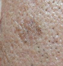 男の顔のシミ取り実験8ヶ月後