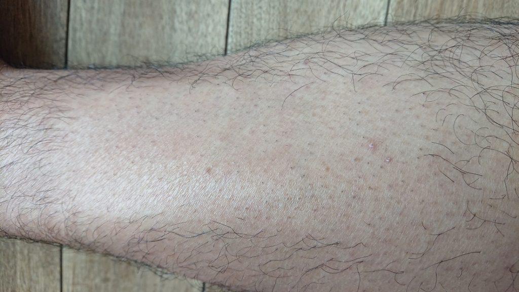 家庭用レーザー脱毛器使用の6週間後の足