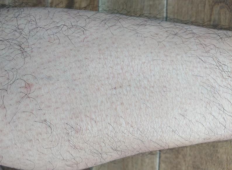 トリアレーザー脱毛 5ヶ月後の足