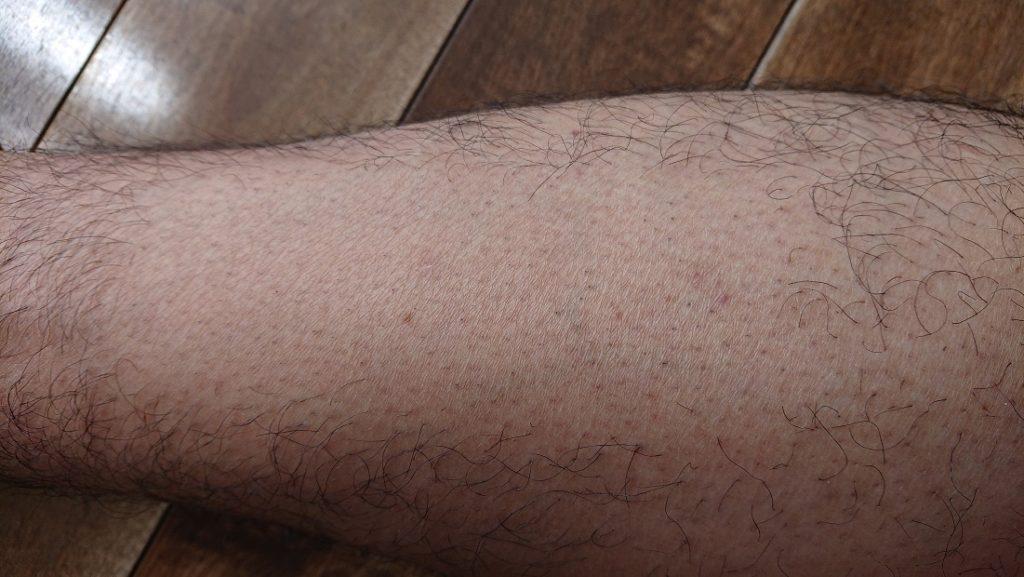 家庭用レーザー脱毛器使用の8週間後の足