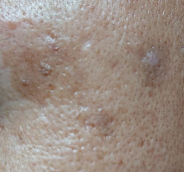 男の顔のシミ取り実験9ヶ月後