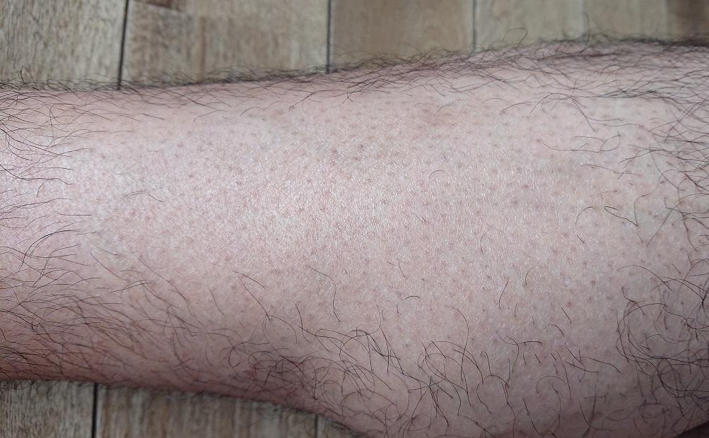 脱毛ラボ レーザー脱毛器使用の10週間後の足