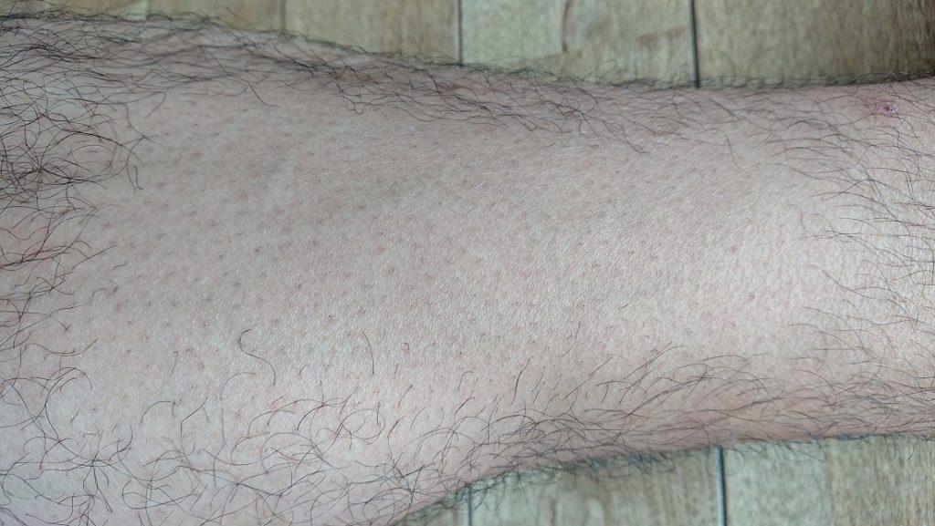 2PS CRYSTAL レーザー脱毛器使用の10週間後の足