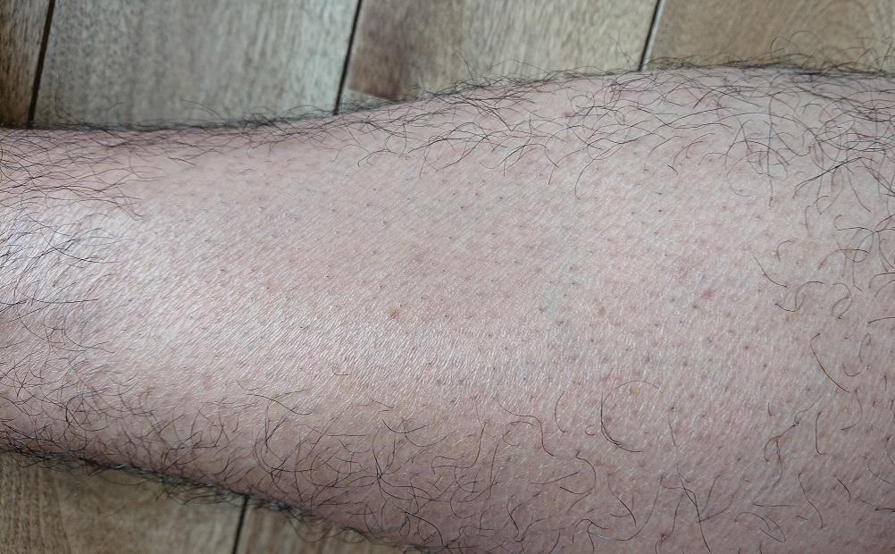 ケノン レーザー脱毛器使用の10週間後の足
