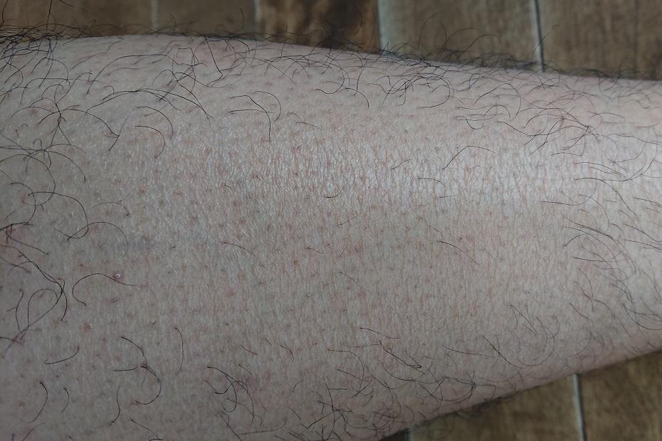 トリアレーザー脱毛 6ヶ月後の足