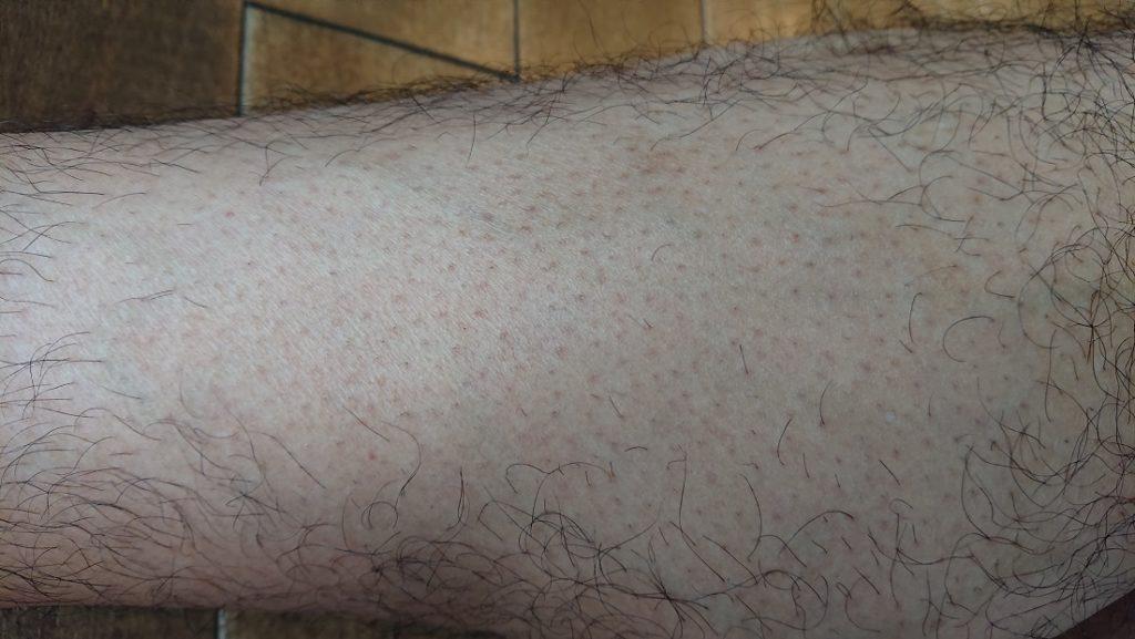 脱毛ラボ レーザー脱毛器使用の12週間後の足