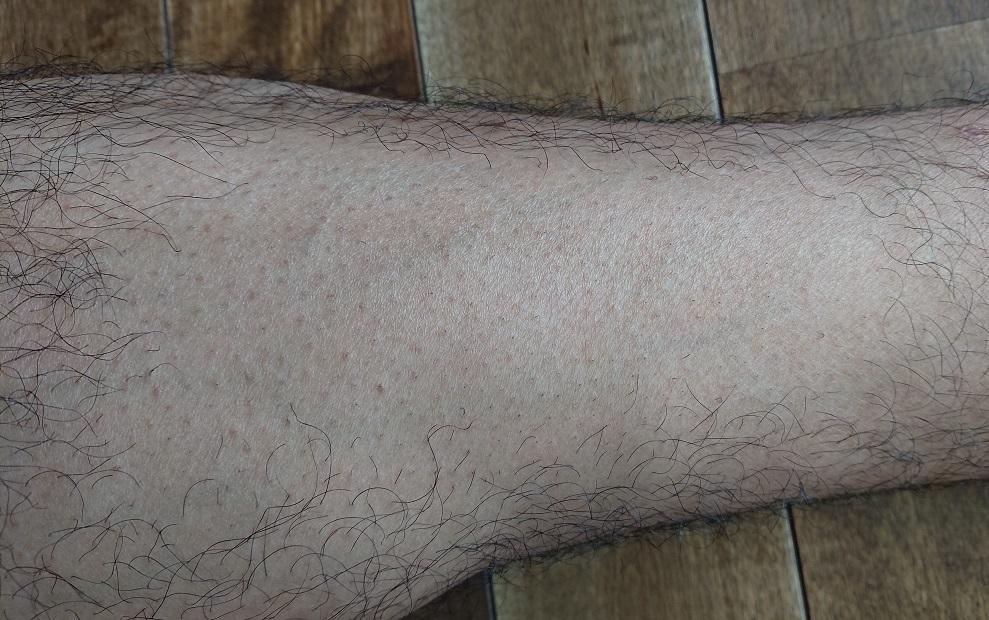 2PS CRYSTAL レーザー脱毛器使用の12週間後の足