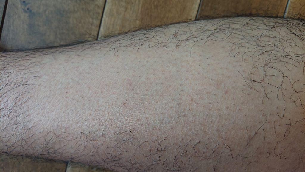 ケノン レーザー脱毛器使用の12週間後の足
