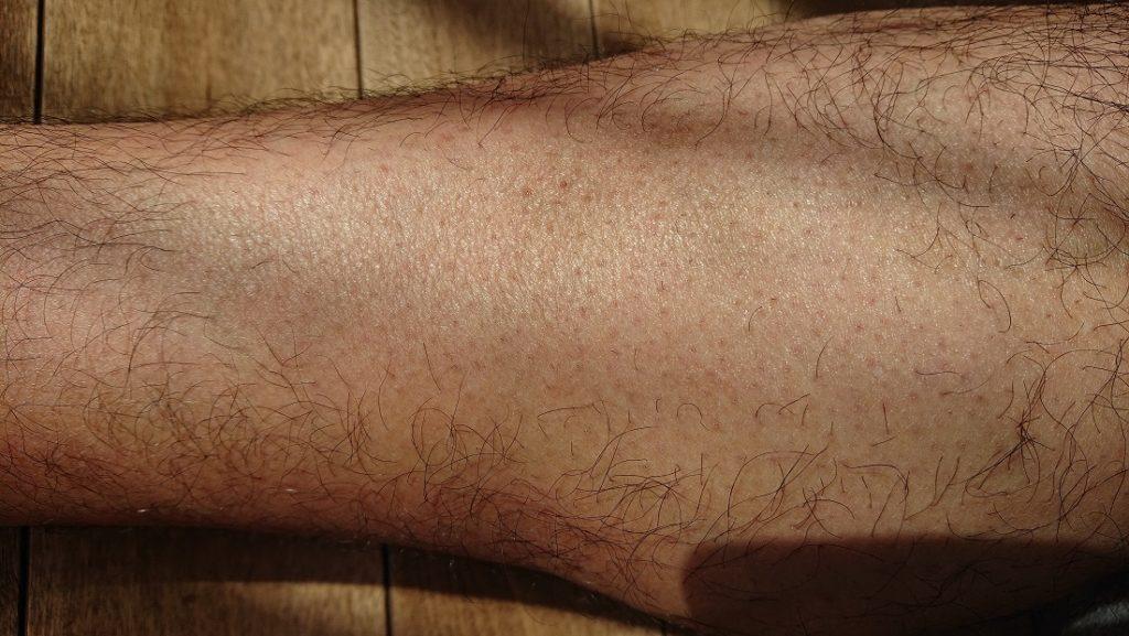 脱毛ラボ レーザー脱毛器使用の14週間後の足