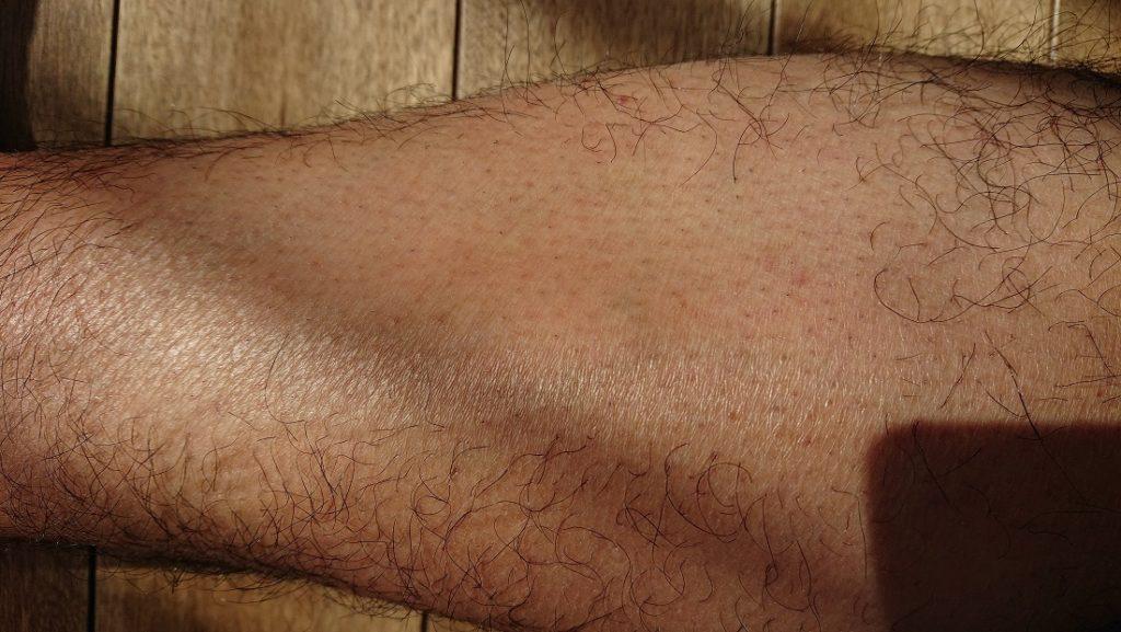 ケノン レーザー脱毛器使用の14週間後の足