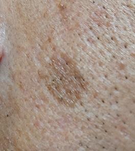男の顔のシミ取り実験10ヶ月後