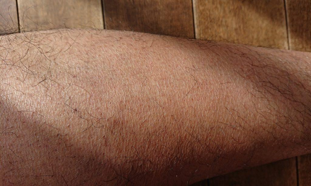 トリアレーザー脱毛 7ヶ月後の足
