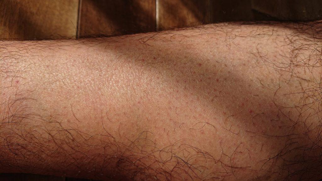 脱毛ラボ レーザー脱毛器使用の16週間後の足