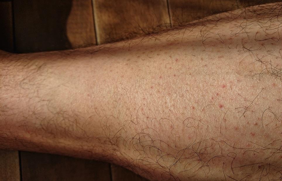 脱毛ラボ レーザー脱毛器使用の4ヶ月後の足