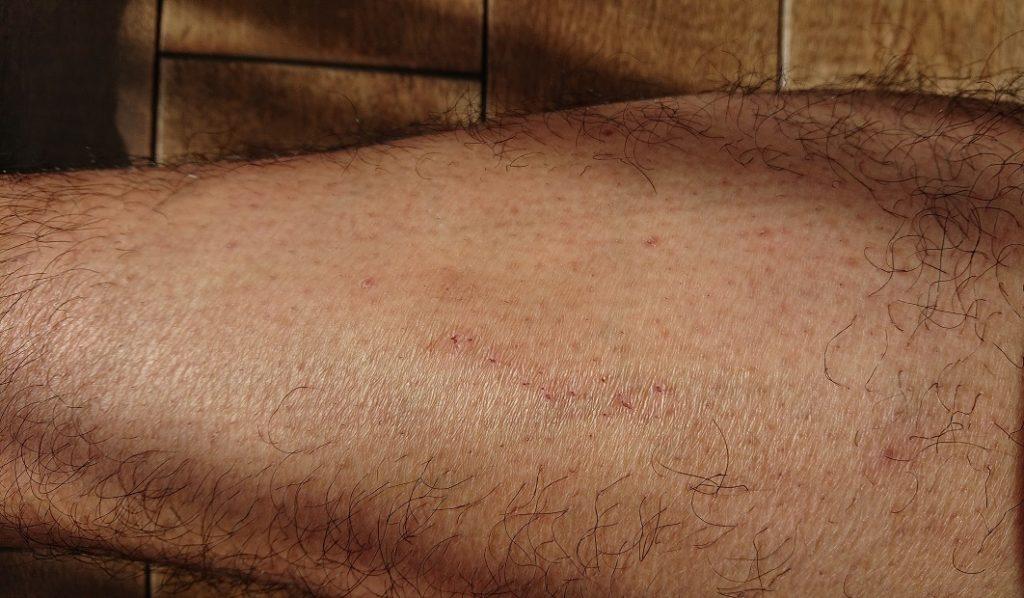 ケノン レーザー脱毛器使用の4ヶ月後の足