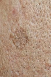 男の顔のシミ取り実験11ヶ月後