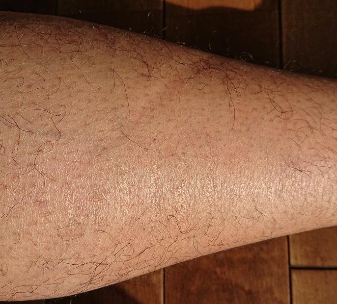トリアレーザー脱毛 8ヶ月後の足