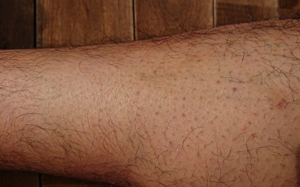 脱毛ラボ レーザー脱毛器使用の5ヶ月後の足