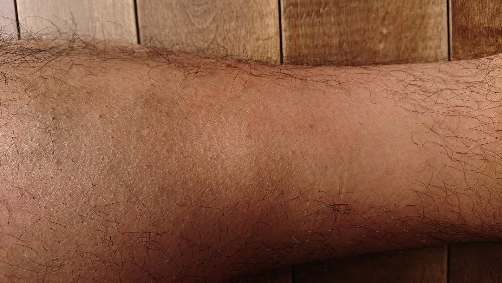 2PS CRYSTAL レーザー脱毛器使用の5ヶ月後の足