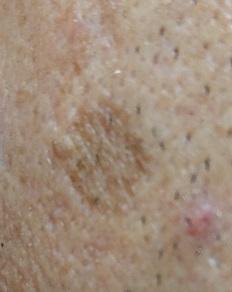 男の顔のシミ取り実験1年後
