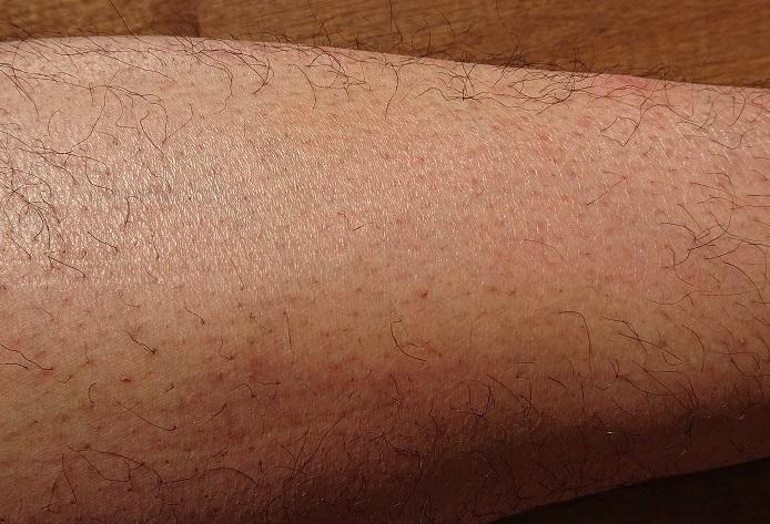 トリアレーザー脱毛 9ヶ月後の足