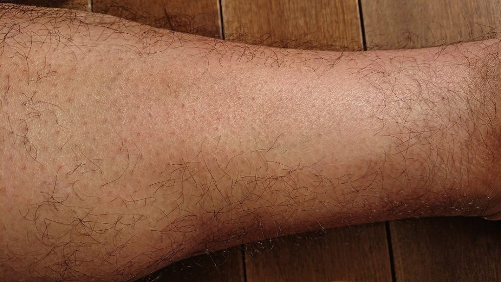 2PS CRYSTAL レーザー脱毛器使用の6ヶ月後の足