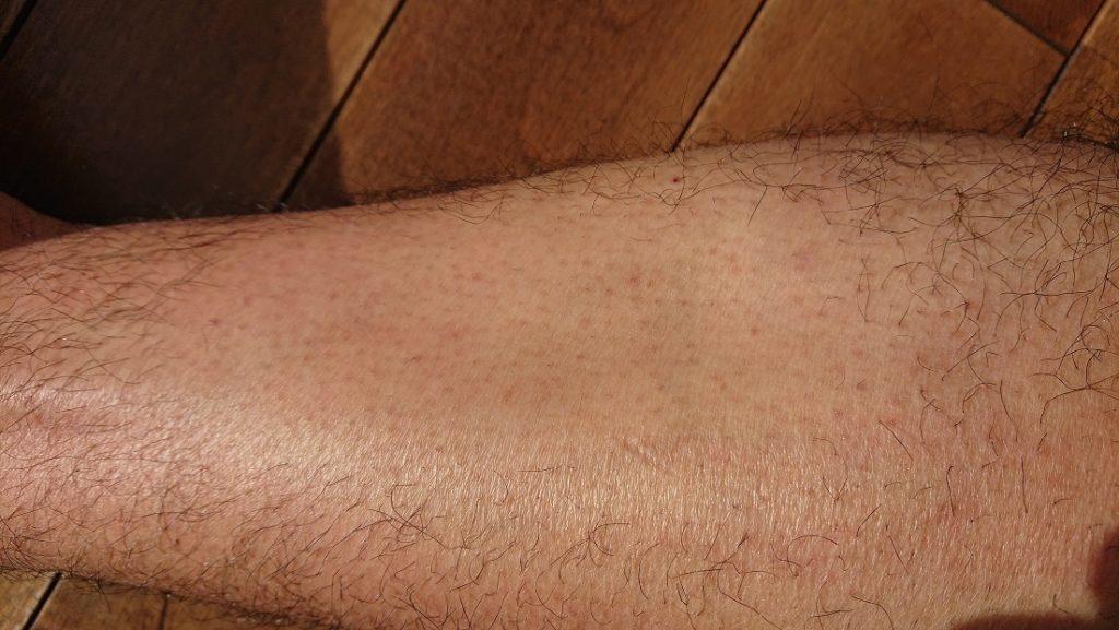 ケノン レーザー脱毛器使用の6ヶ月後の足