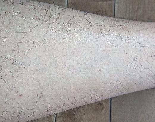 トリアレーザー脱毛 10ヶ月後の足
