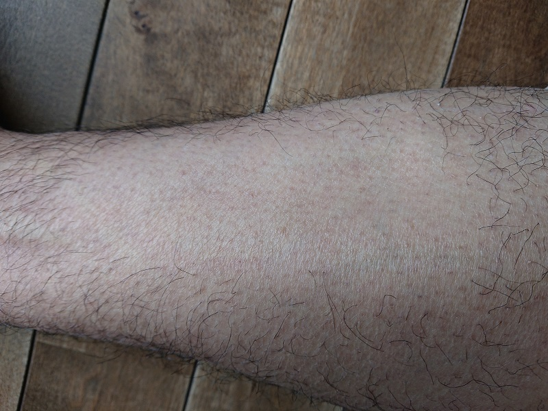 ケノン レーザー脱毛器使用後の1ヶ月後