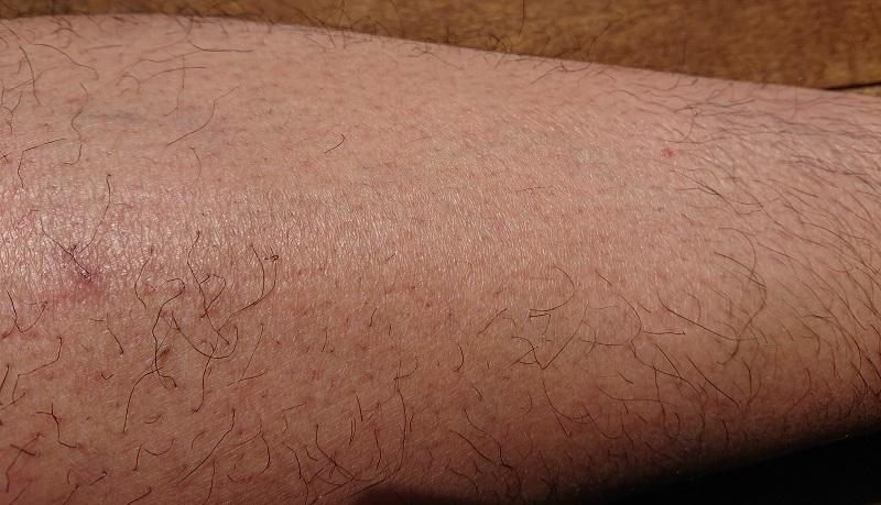 トリアレーザー脱毛処理中止後 1ヶ月後の足