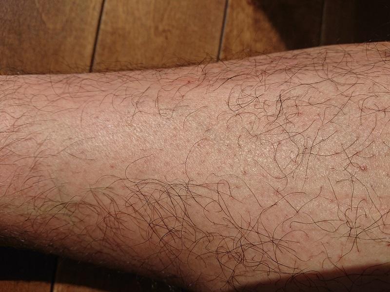 脱毛ラボ レーザー脱毛器使用後の2ヶ月後