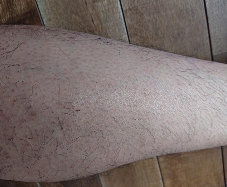 トリアレーザー脱毛処理中止後 2ヶ月後の足