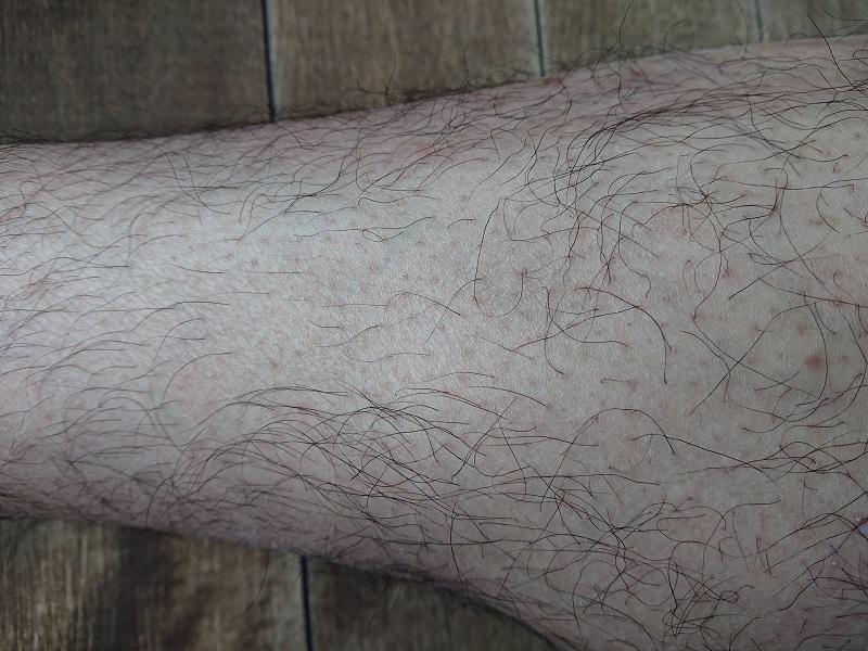 脱毛ラボ レーザー脱毛器使用後の3ヶ月後