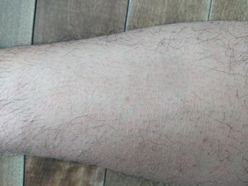ケノン レーザー脱毛器使用後の3ヶ月後
