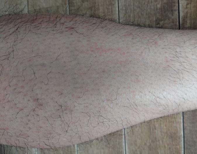 トリアレーザー脱毛処理中止後 3ヶ月後の足