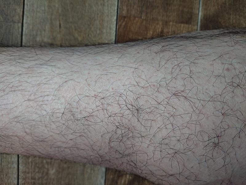 脱毛ラボ レーザー脱毛器使用後の4ヶ月後