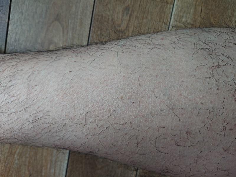 ケノン レーザー脱毛器使用後の4ヶ月後
