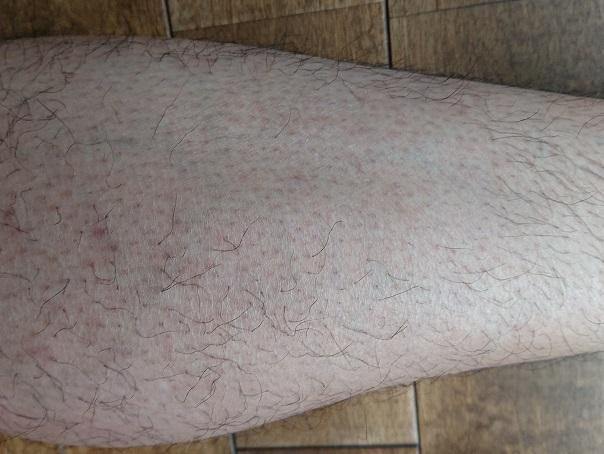 トリアレーザー脱毛処理中止後 4ヶ月後の足